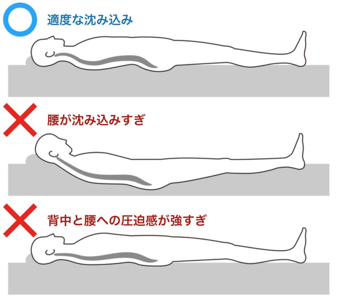 仰向けの正しい寝姿勢・間違った寝姿勢