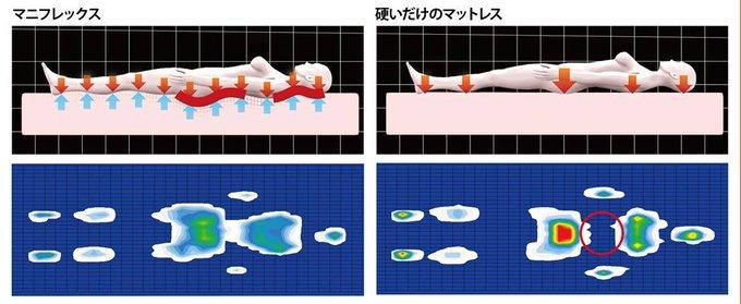 マニフレックスの腰痛対策